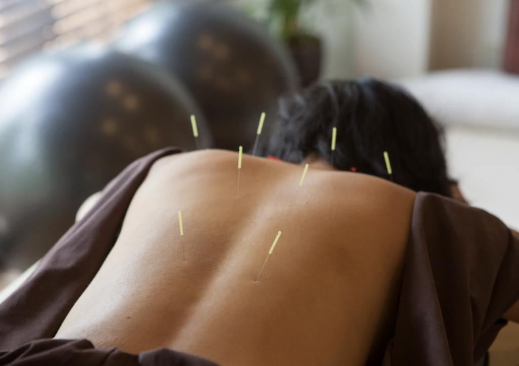 Acupuncture Austin, TX